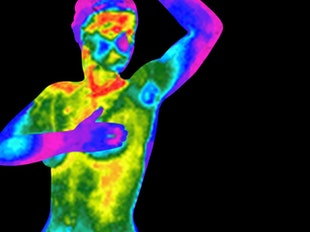 Part 1: Introduction to Medical Thermography icon