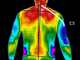 Chiropractic Thermography icon